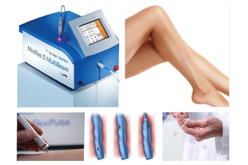 térdízületek és vállak fájdalma intervertebrális artrózis kezelési módszerek